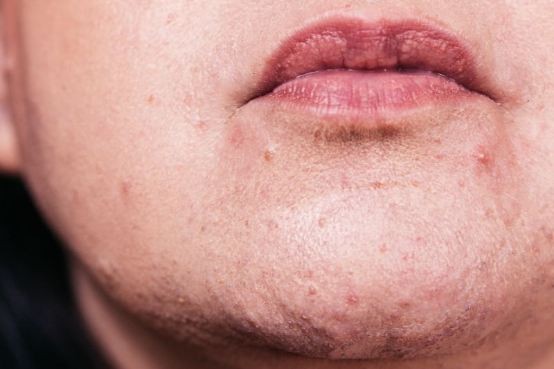acne on woman's chin