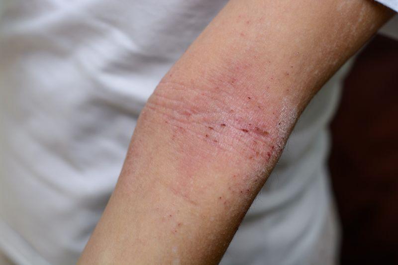 Eczema & Dermatitis on elbow